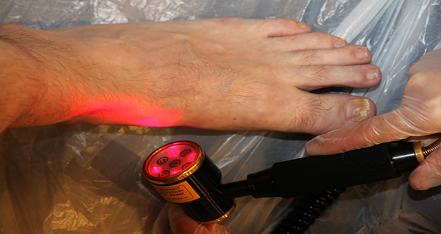 Laser Therapy Treatment Cornwall